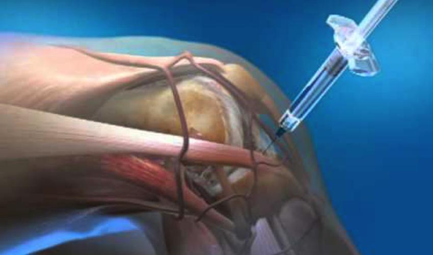 injectionknee